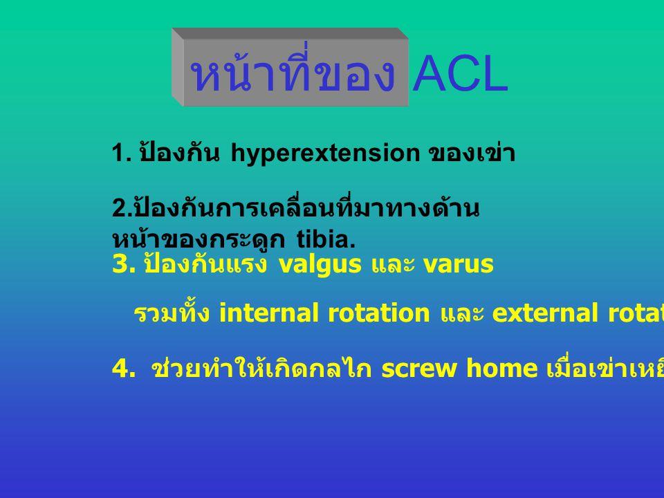 หน้าที่ของ ACL 1. ป้องกัน hyperextension ของเข่า