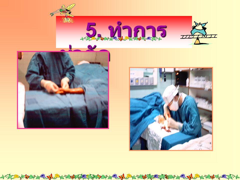 5. ทำการผ่าตัด