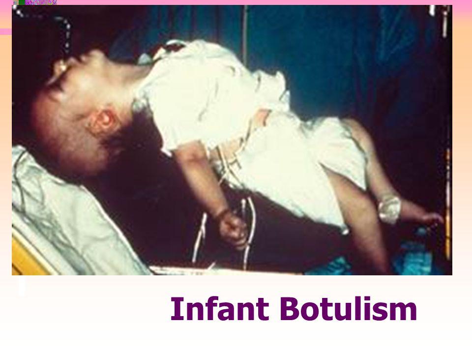 Infant Botulism