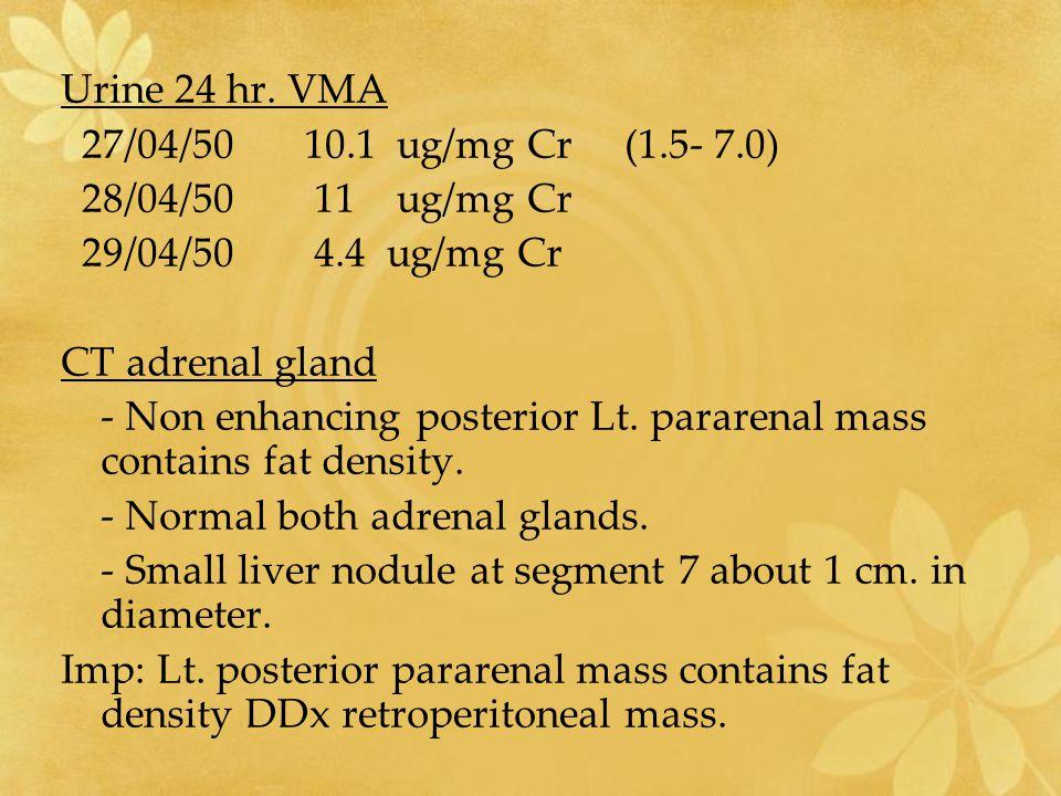 Urine 24 hr. VMA 27/04/50 10.1 ug/mg Cr (1.5- 7.0) 28/04/50 11 ug/mg Cr. 29/04/50 4.4 ug/mg Cr.