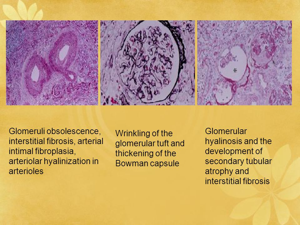 Glomeruli obsolescence, interstitial fibrosis, arterial intimal fibroplasia, arteriolar hyalinization in arterioles