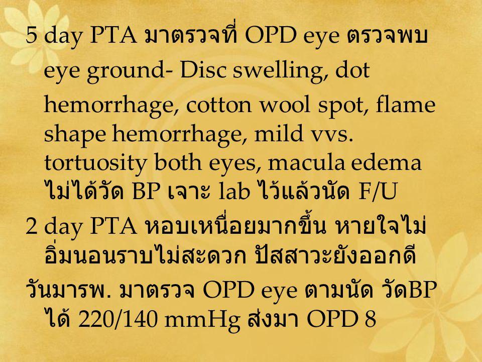 5 day PTA มาตรวจที่ OPD eye ตรวจพบ
