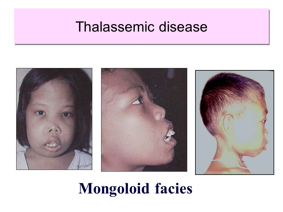 Thalassemic disease Mongoloid facies
