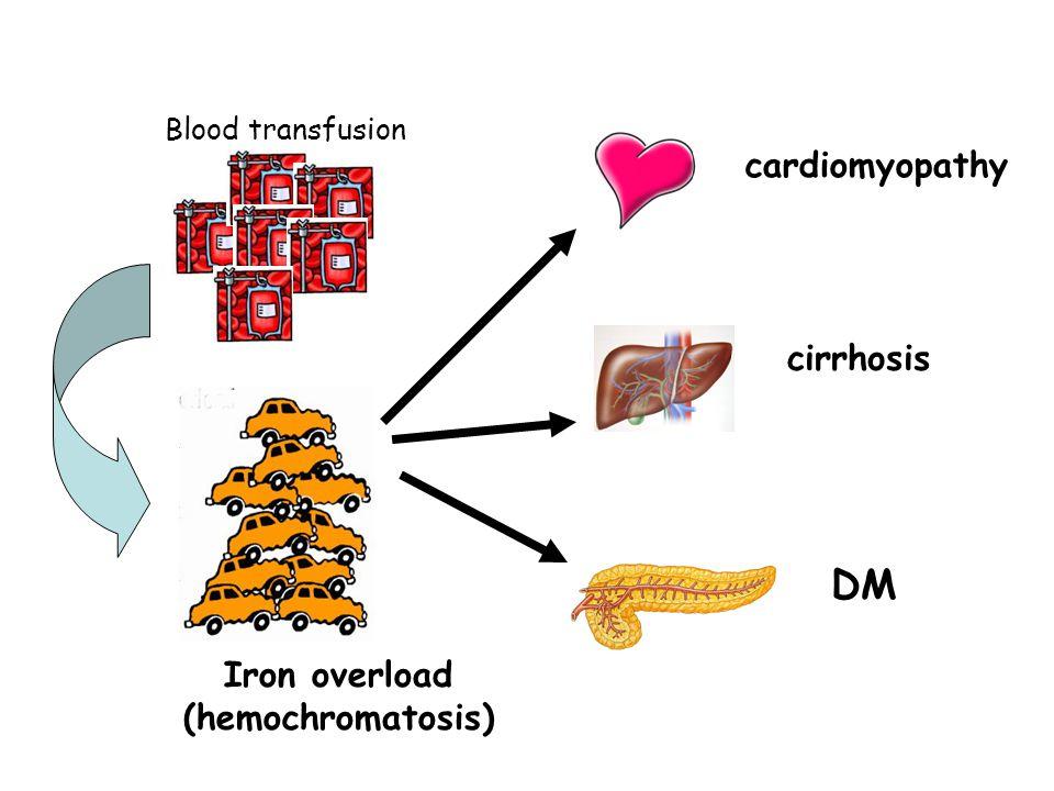 DM cardiomyopathy cirrhosis Iron overload (hemochromatosis)