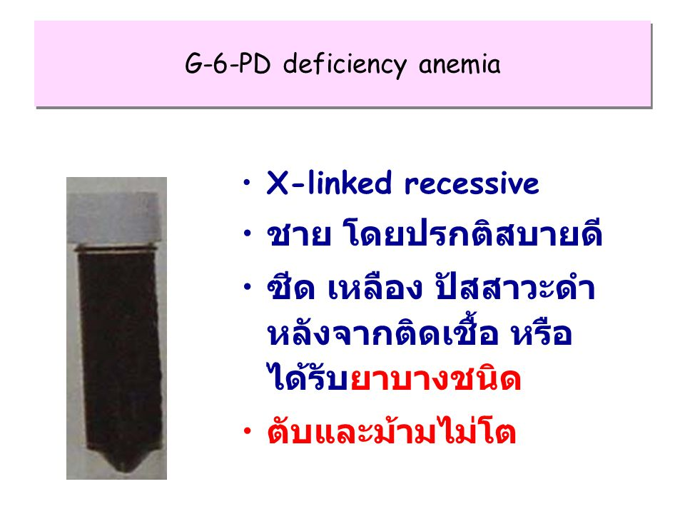 G-6-PD deficiency anemia