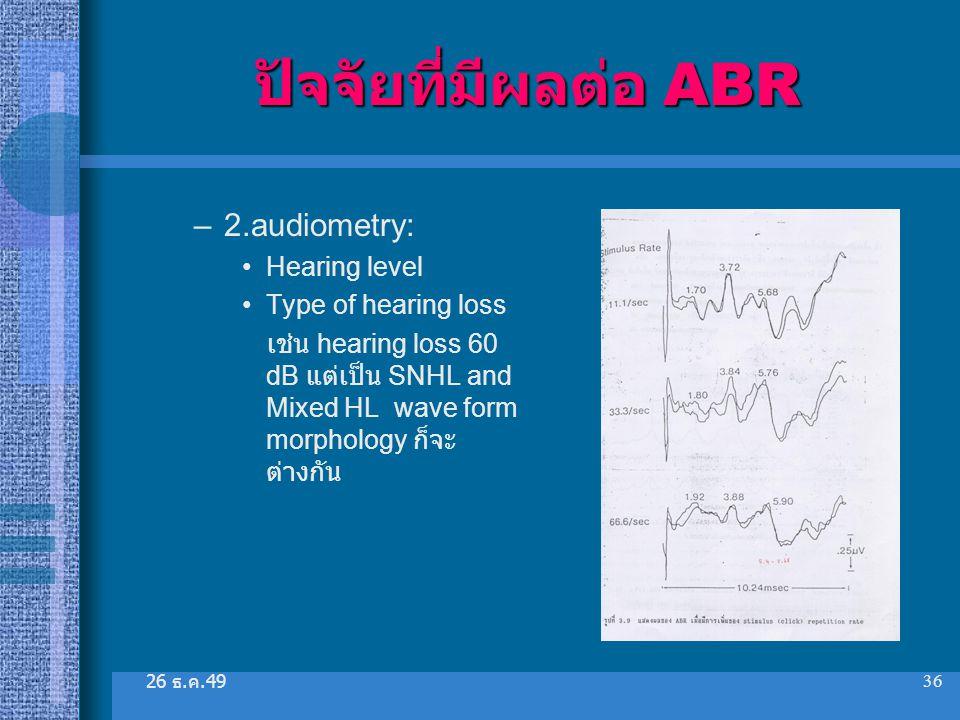 ปัจจัยที่มีผลต่อ ABR 2.audiometry: Hearing level Type of hearing loss
