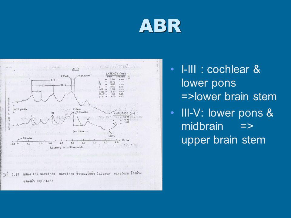 ABR I-III : cochlear & lower pons =>lower brain stem