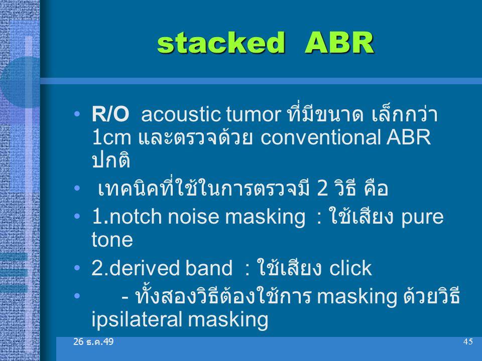 stacked ABR R/O acoustic tumor ที่มีขนาด เล็กกว่า 1cm และตรวจด้วย conventional ABR ปกติ เทคนิคที่ใช้ในการตรวจมี 2 วิธี คือ.