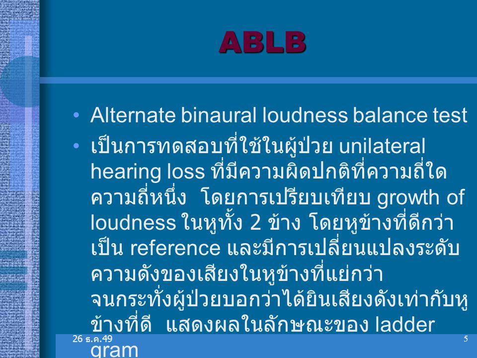 ABLB Alternate binaural loudness balance test