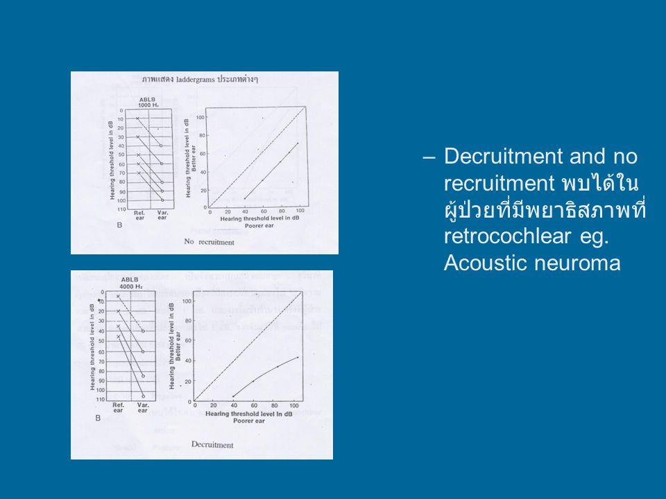 Decruitment and no recruitment พบได้ในผู้ป่วยที่มีพยาธิสภาพที่ retrocochlear eg. Acoustic neuroma