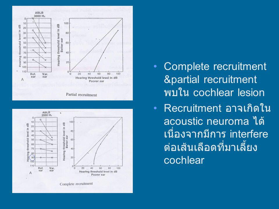Complete recruitment &partial recruitment พบใน cochlear lesion