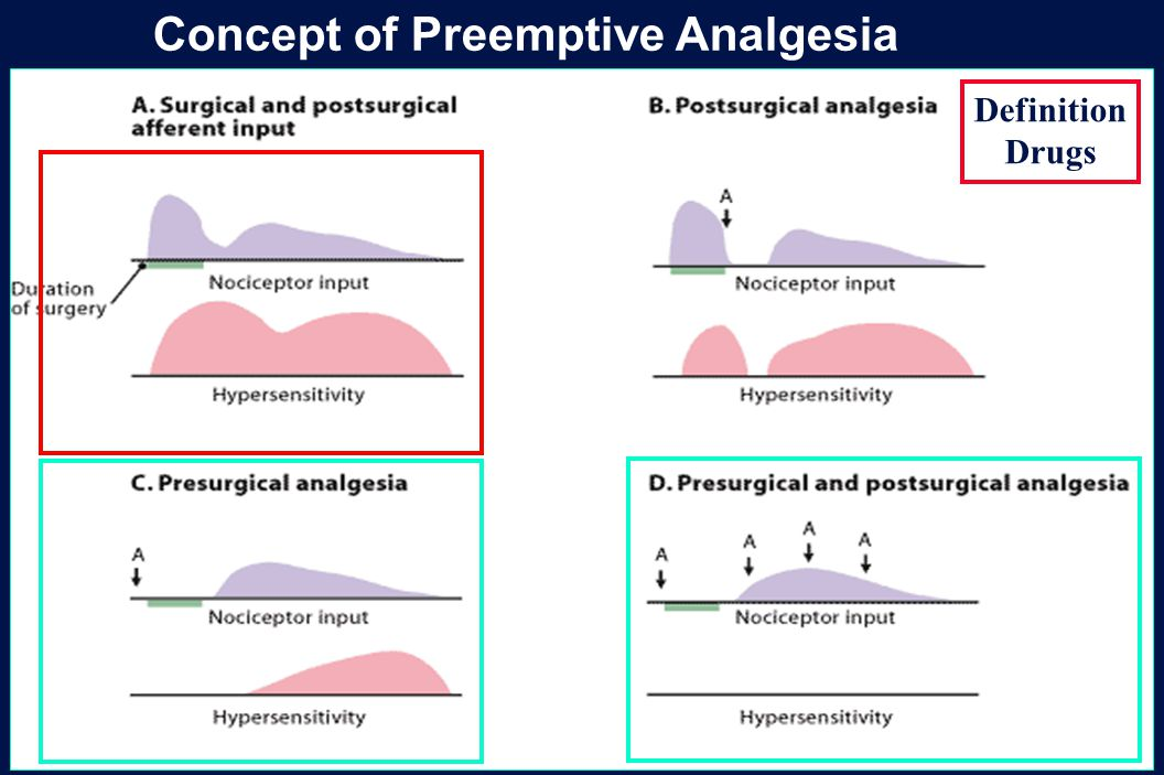 Concept of Preemptive Analgesia