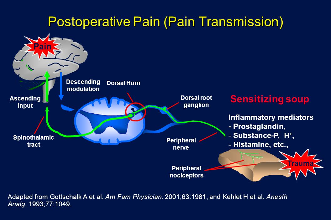 Postoperative Pain (Pain Transmission)