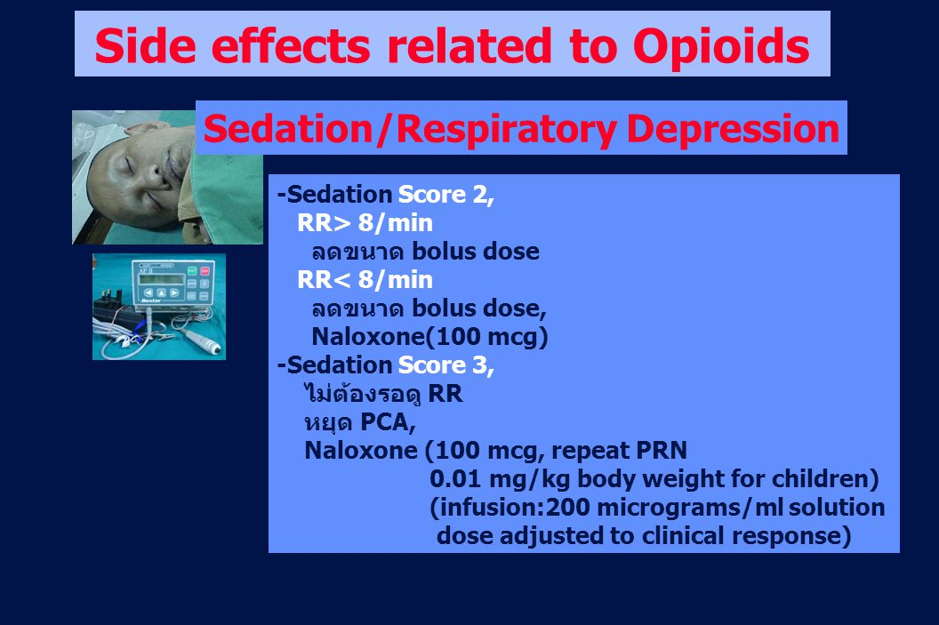 Side effects related to Opioids Sedation/Respiratory Depression