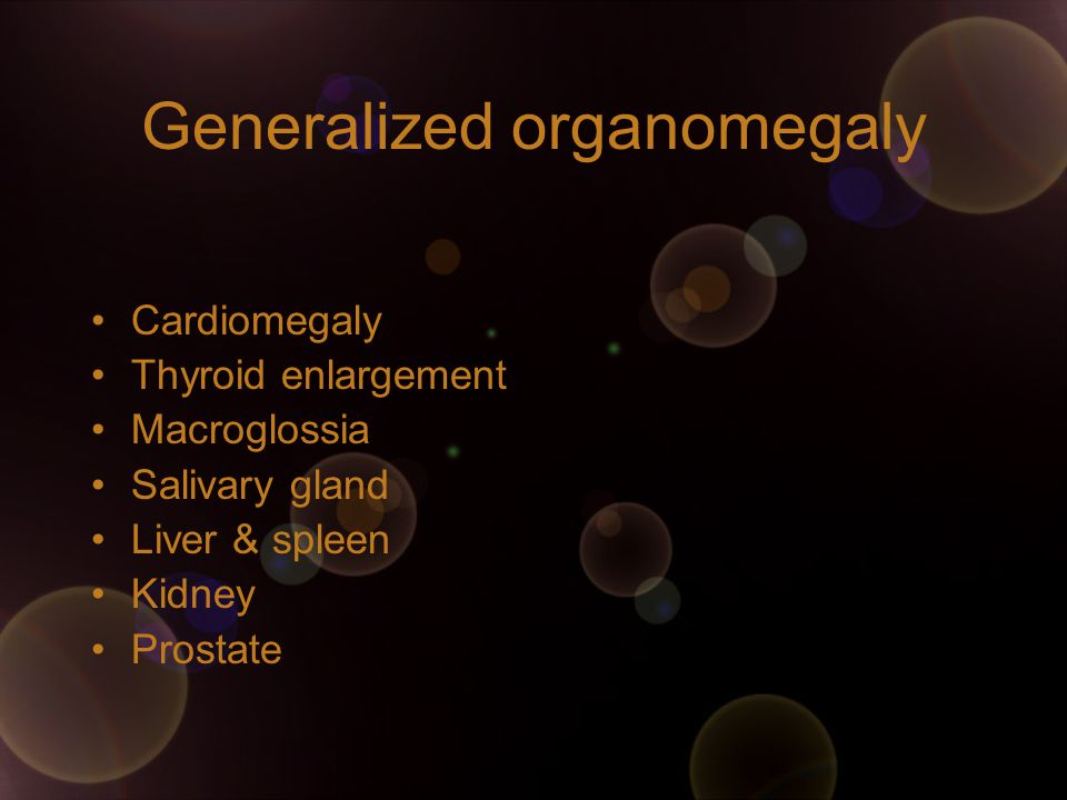 Generalized organomegaly