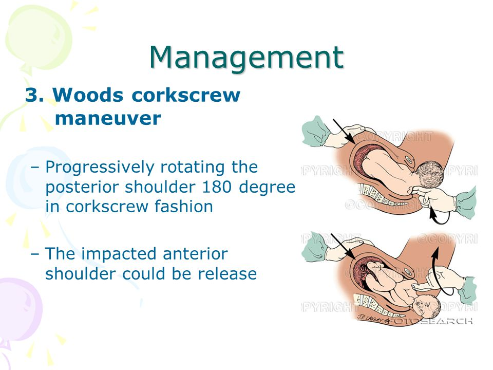 Management 3. Woods corkscrew maneuver