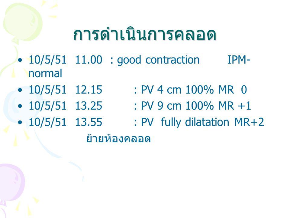 การดำเนินการคลอด 10/5/51 11.00 : good contraction IPM-normal