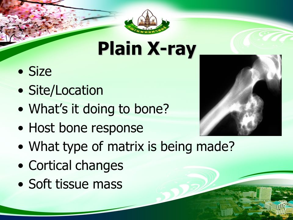 Plain X-ray Size Site/Location What's it doing to bone