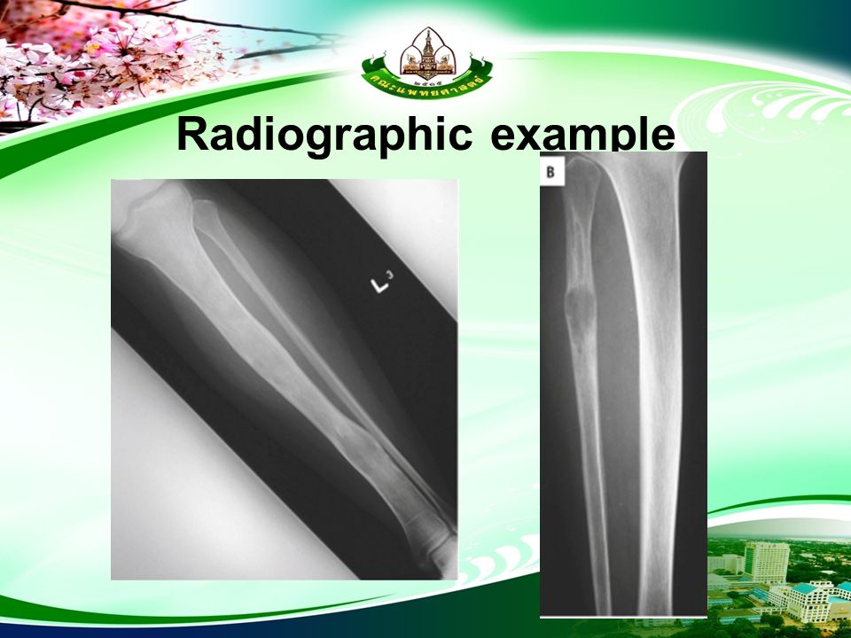 Radiographic example