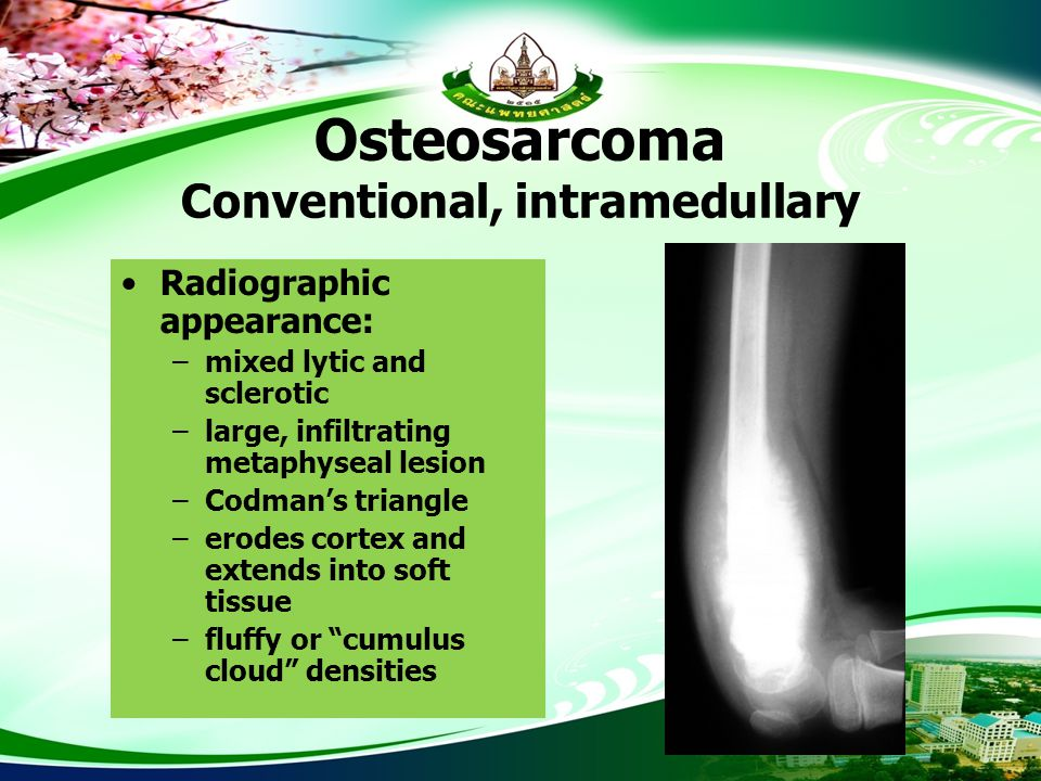 Osteosarcoma Conventional, intramedullary