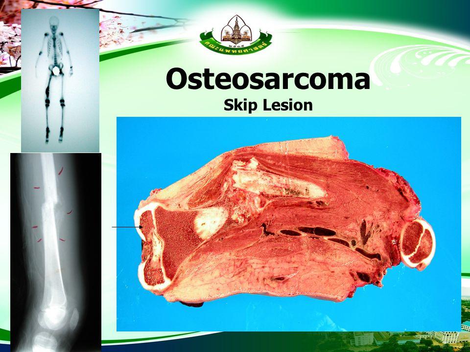 Osteosarcoma Skip Lesion