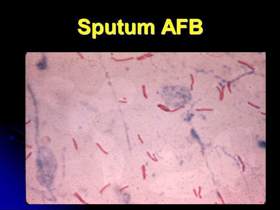 Sputum AFB
