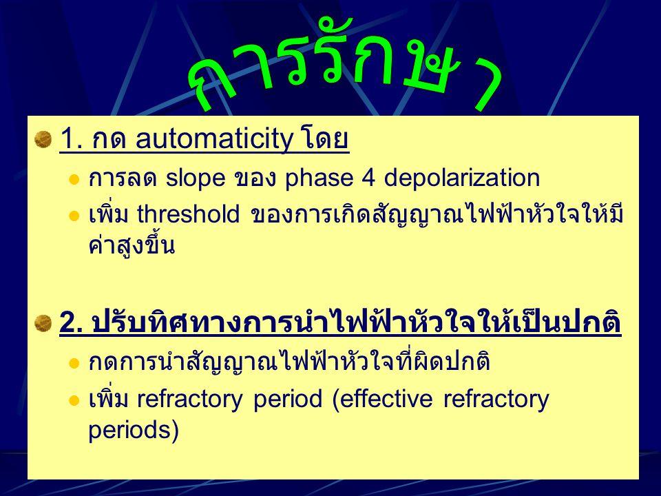 การรักษา 1. กด automaticity โดย