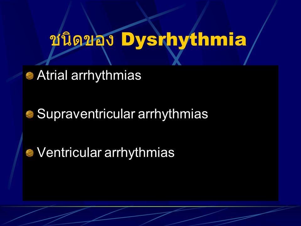 ชนิดของ Dysrhythmia Atrial arrhythmias Supraventricular arrhythmias