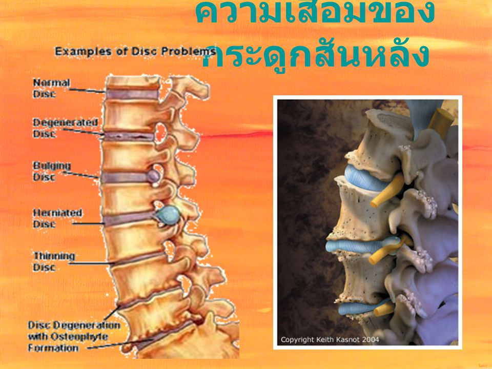 ความเสื่อมของกระดูกสันหลัง