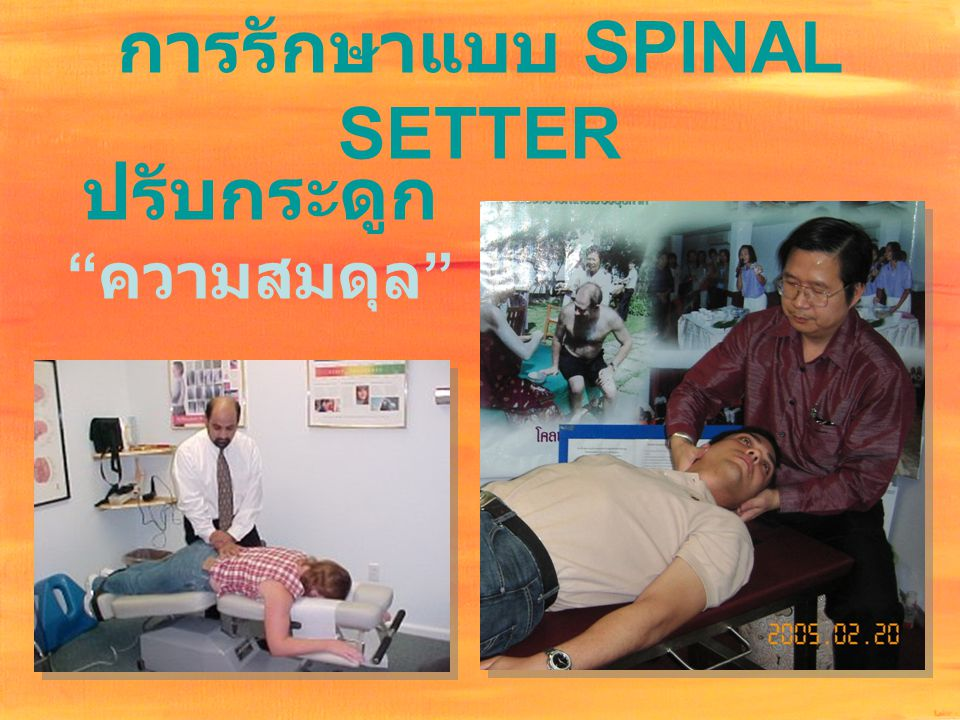 การรักษาแบบ SPINAL SETTER