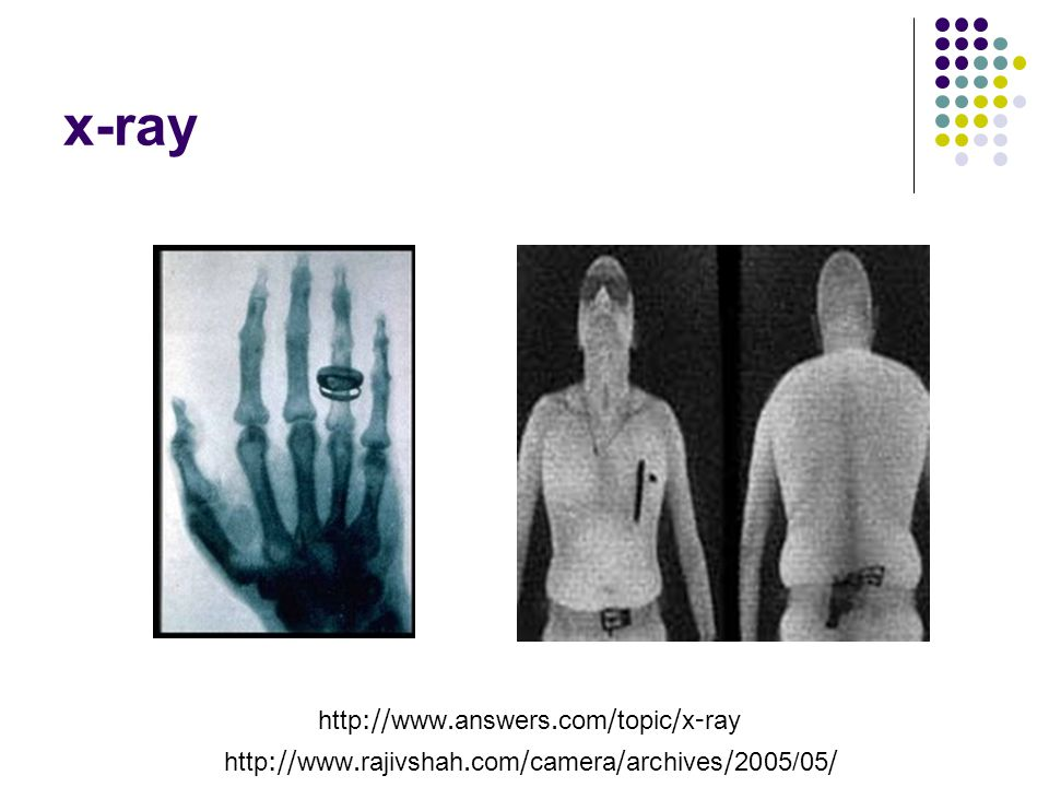 x-ray http://www.answers.com/topic/x-ray