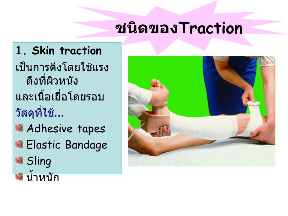 ชนิดของTraction 1. Skin traction เป็นการดึงโดยใช้แรงดึงที่ผิวหนัง