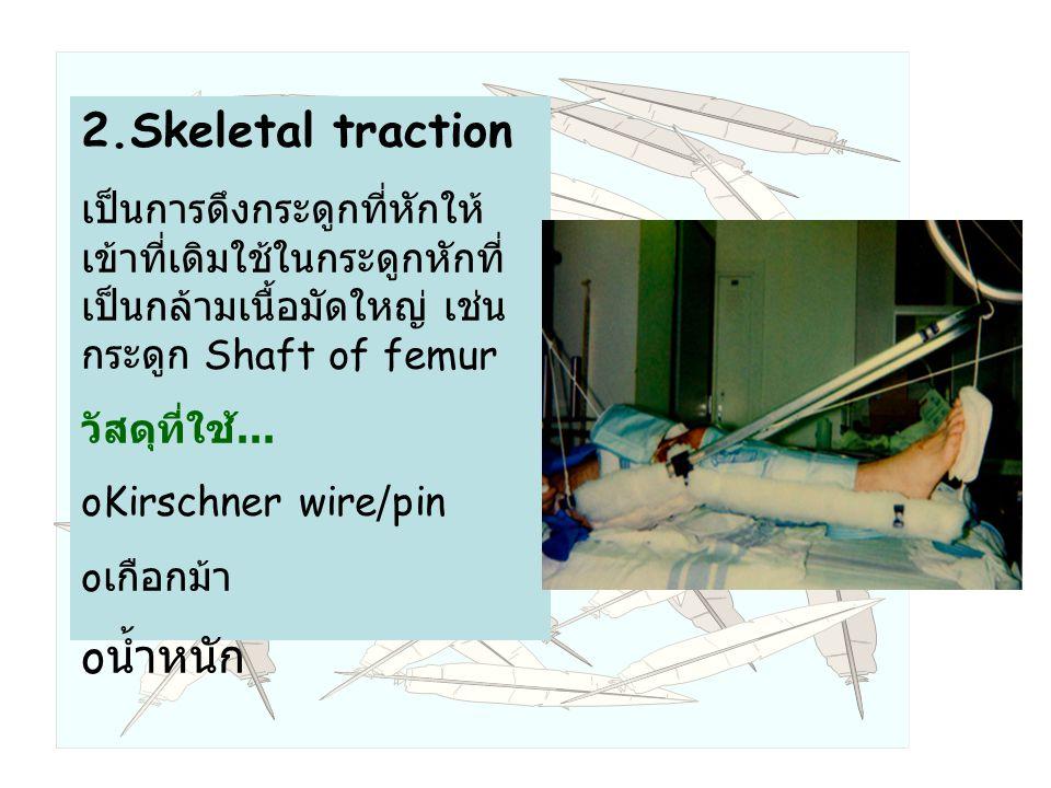 2.Skeletal traction น้ำหนัก