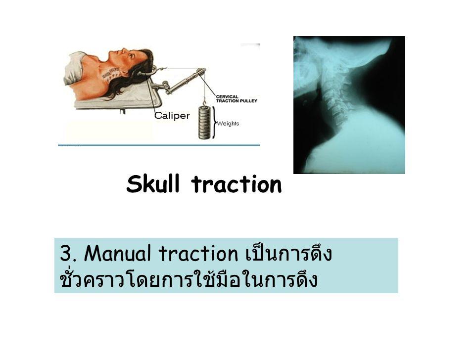 Skull traction 3. Manual traction เป็นการดึงชั่วคราวโดยการใช้มือในการดึง