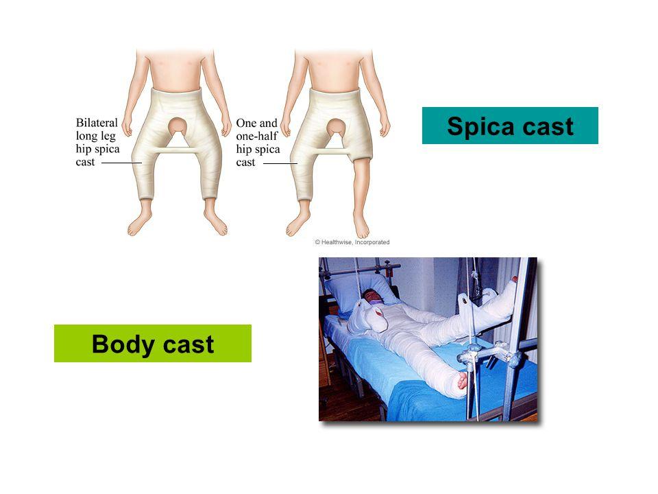 Spica cast Body cast