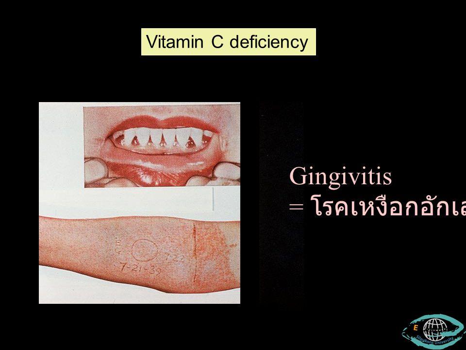 Vitamin C deficiency Gingivitis = โรคเหงือกอักเสบ