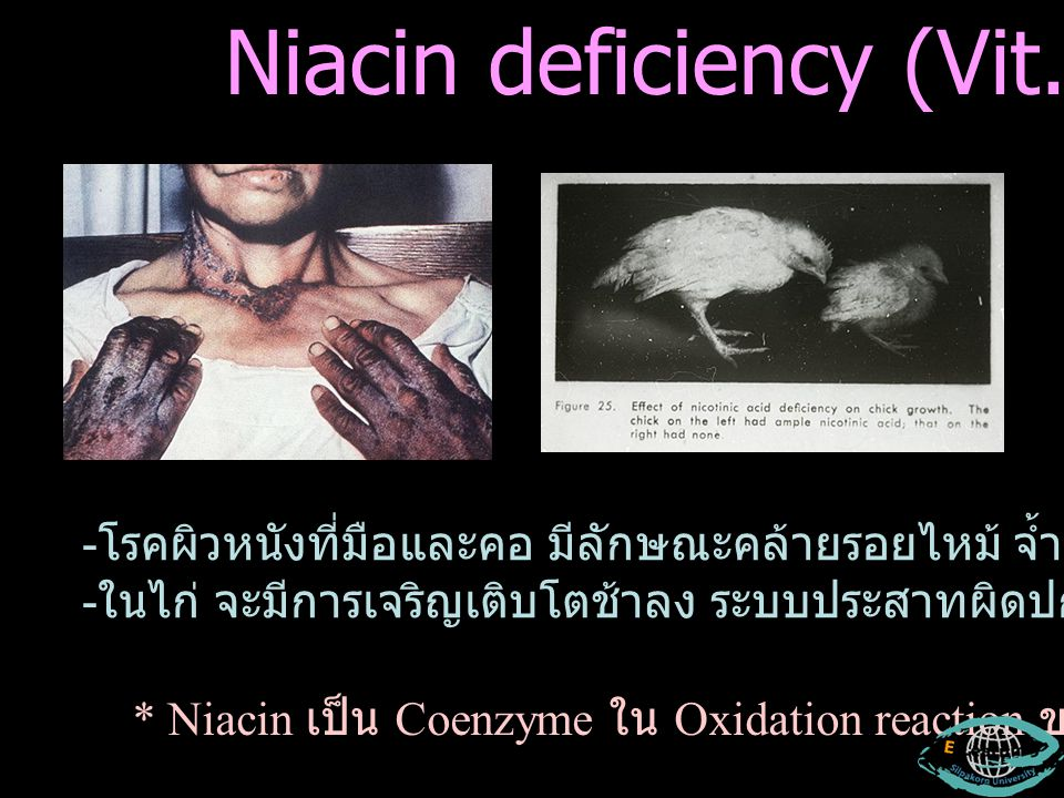Niacin deficiency (Vit. G)