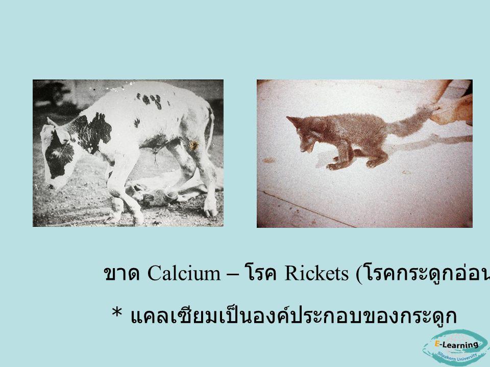 ขาด Calcium – โรค Rickets (โรคกระดูกอ่อน)