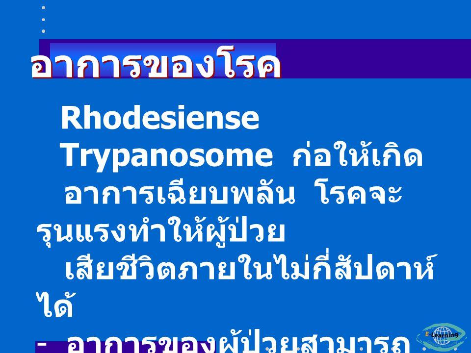 อาการของโรค Rhodesiense Trypanosome ก่อให้เกิด
