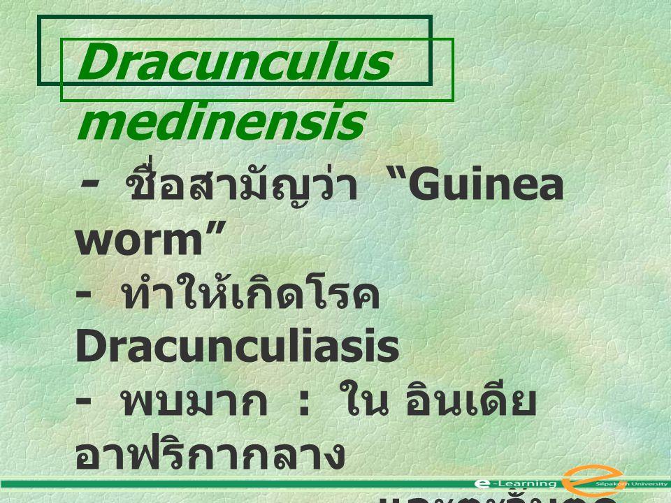 Dracunculus medinensis - ชื่อสามัญว่า Guinea worm