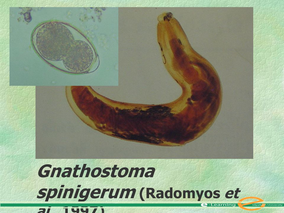 Gnathostoma spinigerum (Radomyos et al., 1997)