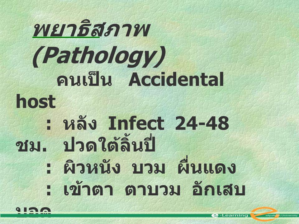 พยาธิสภาพ (Pathology)