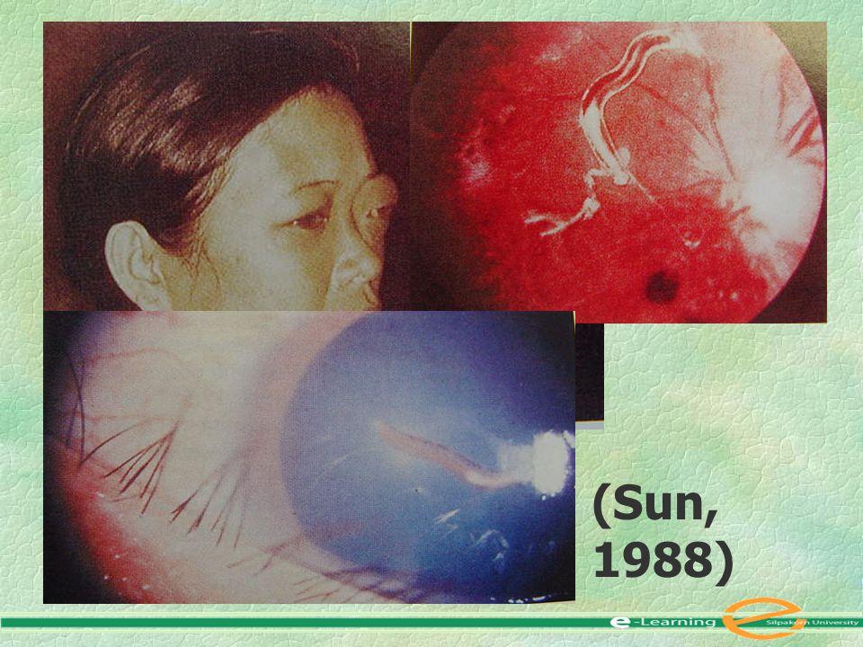 (Sun, 1988)