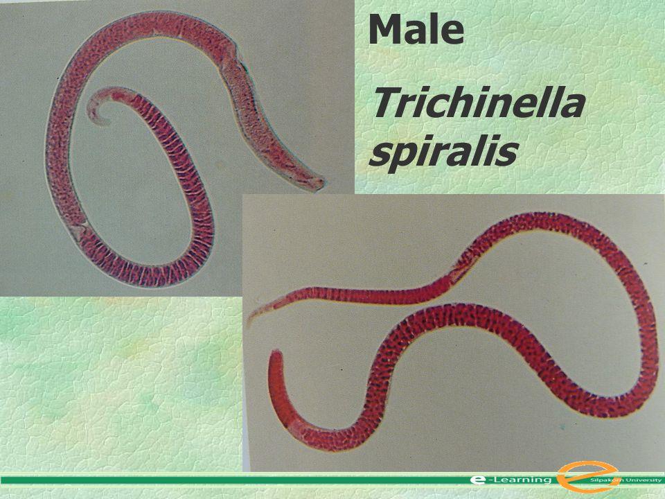 Male Trichinella spiralis (Radomyos et al., 1997)