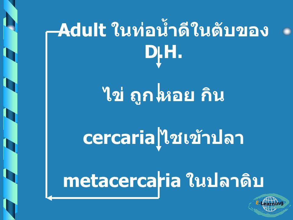 Adult ในท่อน้ำดีในตับของ D.H. metacercaria ในปลาดิบ