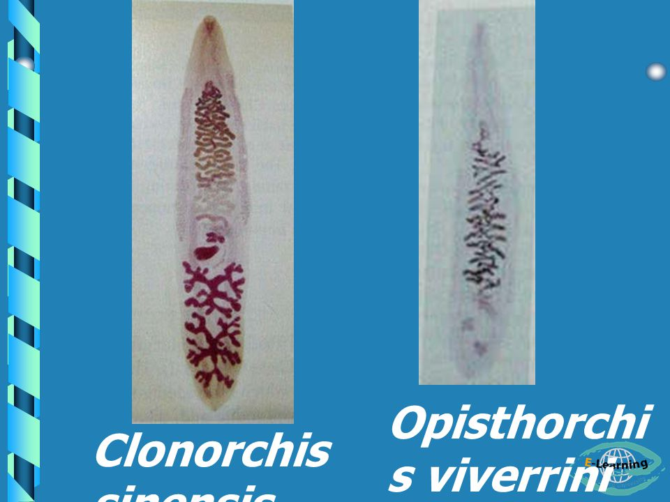 Opisthorchis viverrini
