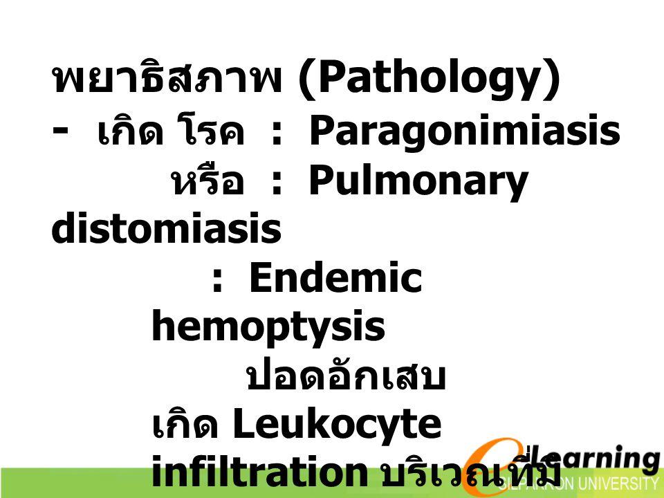 พยาธิสภาพ (Pathology) - เกิด โรค : Paragonimiasis