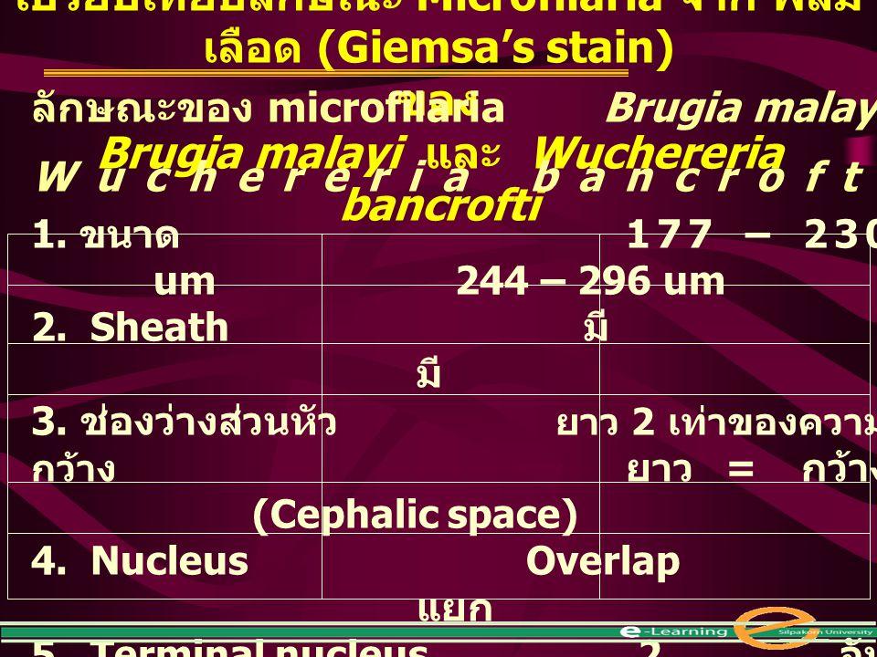 เปรียบเทียบลักษณะ Microfilaria จาก ฟิล์มเลือด (Giemsa's stain) ของ
