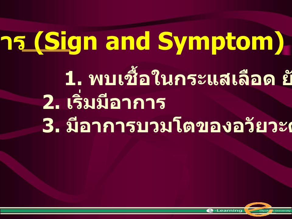 อาการ (Sign and Symptom)
