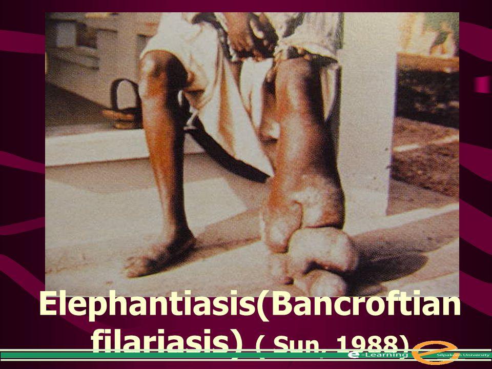 Elephantiasis(Bancroftian filariasis) ( Sun, 1988)